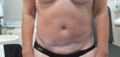 Tummy Tuck Before & After Patient #66