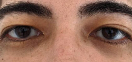 Blepharoplasty Before & After Patient #408