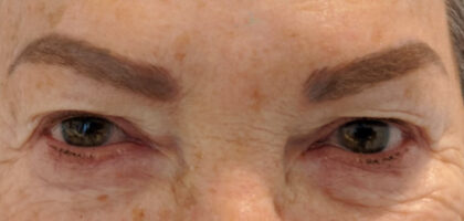 Blepharoplasty Before & After Patient #411