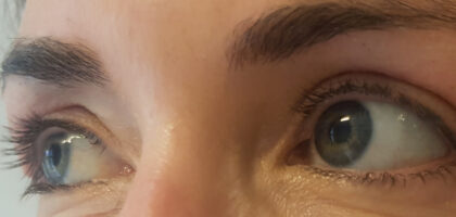 Blepharoplasty Before & After Patient #417