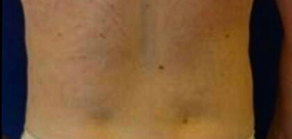 Liposuction Before & After Patient #379
