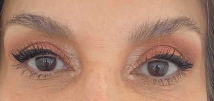 Blepharoplasty Before & After Patient #414