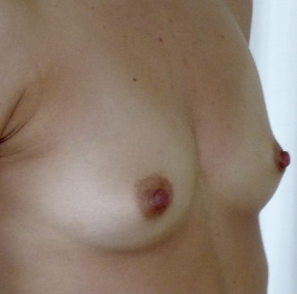 Fat Transfer to Breast Before & After Patient #653